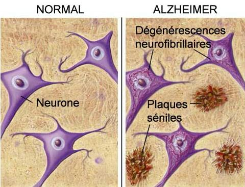 Alzheimer : une maladie infectieuse ? - Source de l'image:http://www.expasy.ch