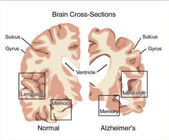 Détecter les signes précoces de la maladie d'Alzheimer - Source de l'image: http://www.innovationlejournal.fr