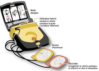 Des défibrillateurs pour les maisons de retraite - Source de l'image : http://www.angers.fr